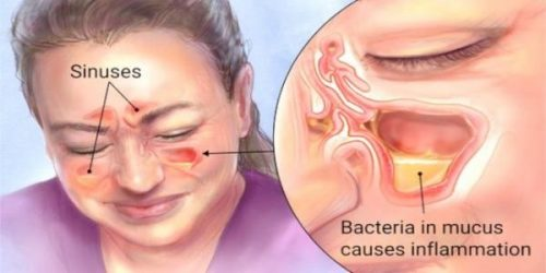 colloidal silver for sinus infection